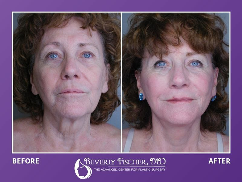 Beverly Fischer – Surgical and Non- Surgical Procedures